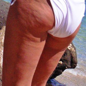 The Best Way to Get Rid of Butt Cellulite
