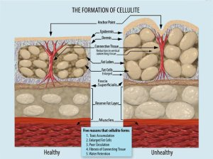 Cause of cellulite