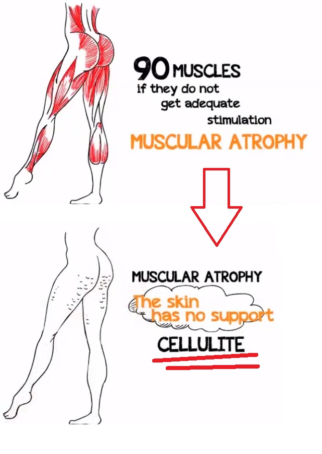 what is the truth about cellulite diagram