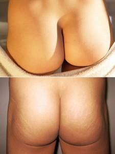 Human_buttocks