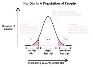 hip dip in a normal population
